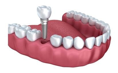 Dental Implants Treatment - Tarneit Dental Care