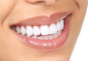 Teeth Whitening Treatment - Tarneit Dental Care