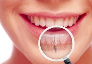 Dental Implants Treatment - Tarneit Dental Care