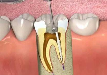 Root canal treatment | Tarneit Dental Care